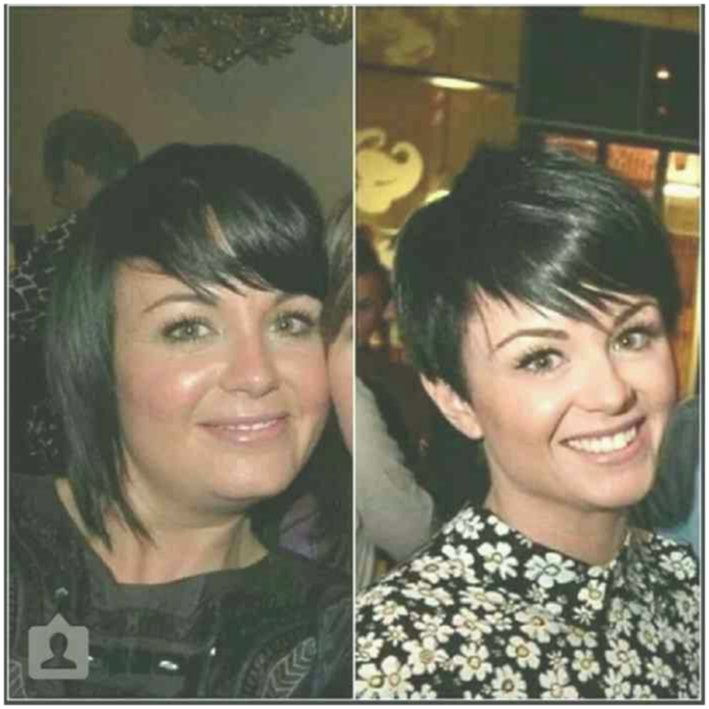 modern short hairstyles ladies before after build layout-Superb Short Hairstyles Ladies Before After Layout